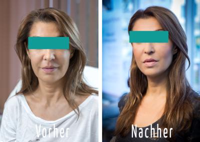 vorher_nachher2